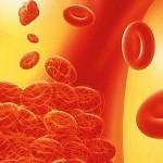 Причины тромбоза