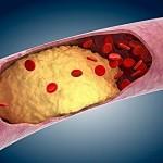 Диета при гипертонии на фоне ожирения